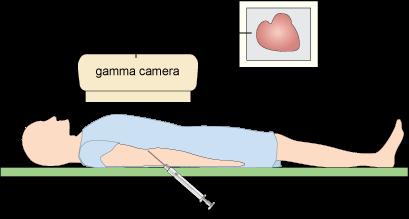 metals and life chapter 9 gamma ray diagram x ray machine block diagram pdf #13